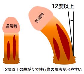 陰茎彎曲症の手術適応画像