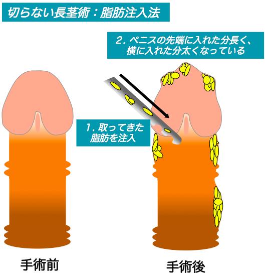 切らない長茎術:脂肪注入法