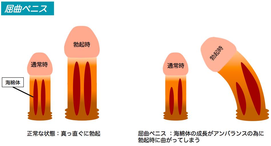屈曲ペニスの仕組み