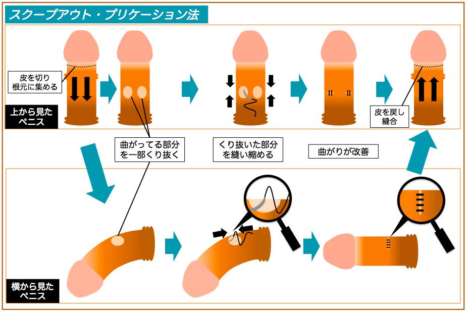 陰茎彎曲症手術説明図