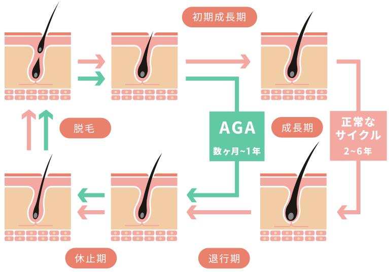AGAの原因図