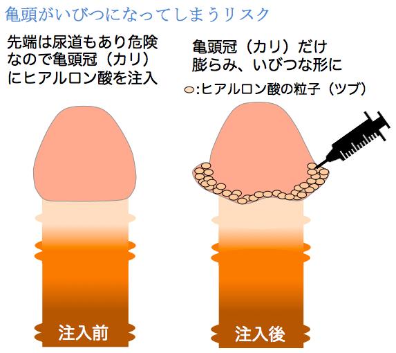 亀頭へのヒアルロン酸注入リスクイラスト