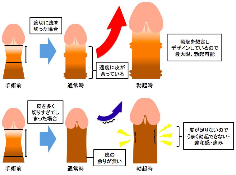 包皮の切りすぎ説明図