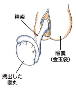 睾丸摘出説明図