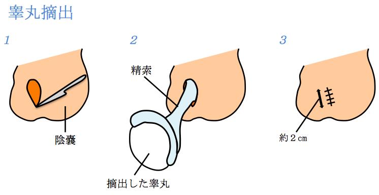 睾丸手術説明イラスト