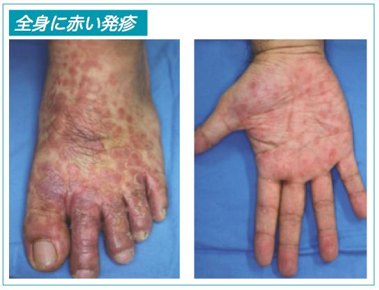 梅毒の全身に赤い発疹説明写真