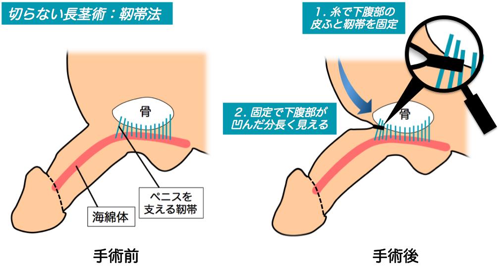 切らない長茎術:靭帯法説明イラスト