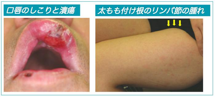 梅毒の唇とリンパ節腫脹説明写真