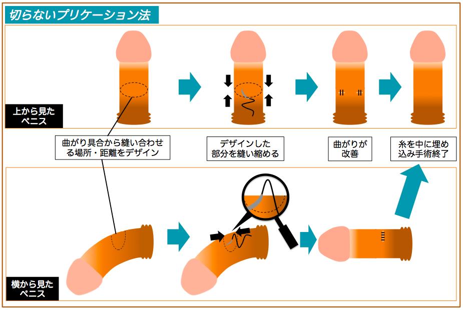 陰茎彎曲症手術説明図2