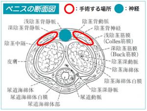 手術で操作する部位説明図