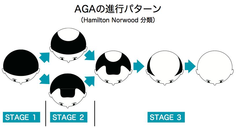 AGAステージ図