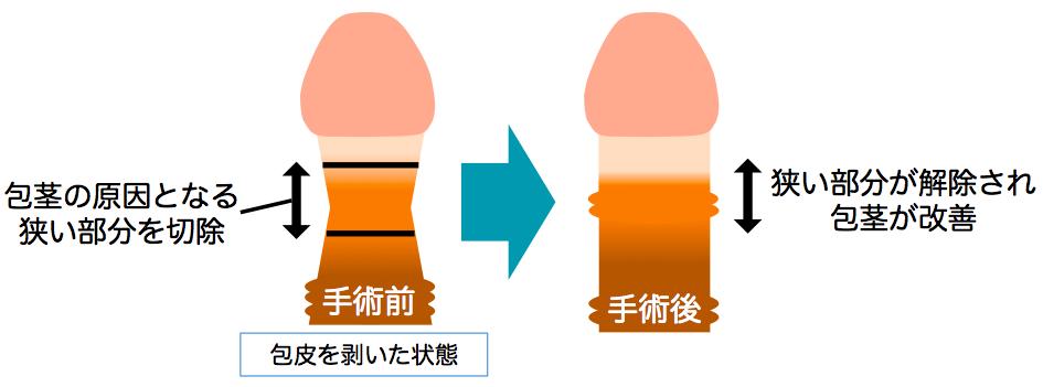 包茎手術説明画像