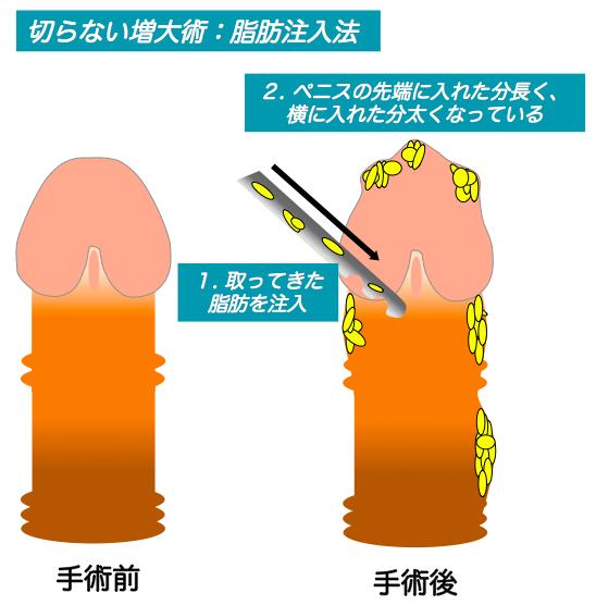ペニス脂肪注入説明イラスト
