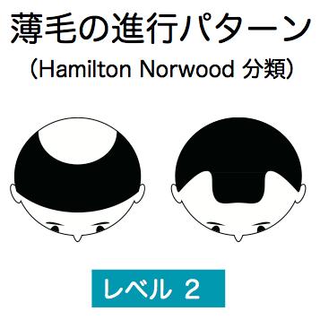薄毛の進行レベル2説明図