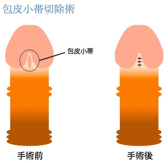 包皮小帯切除術説明画像