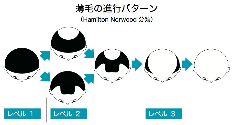 薄毛の進行レベル説明図