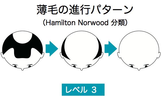 薄毛の進行レベル3説明図