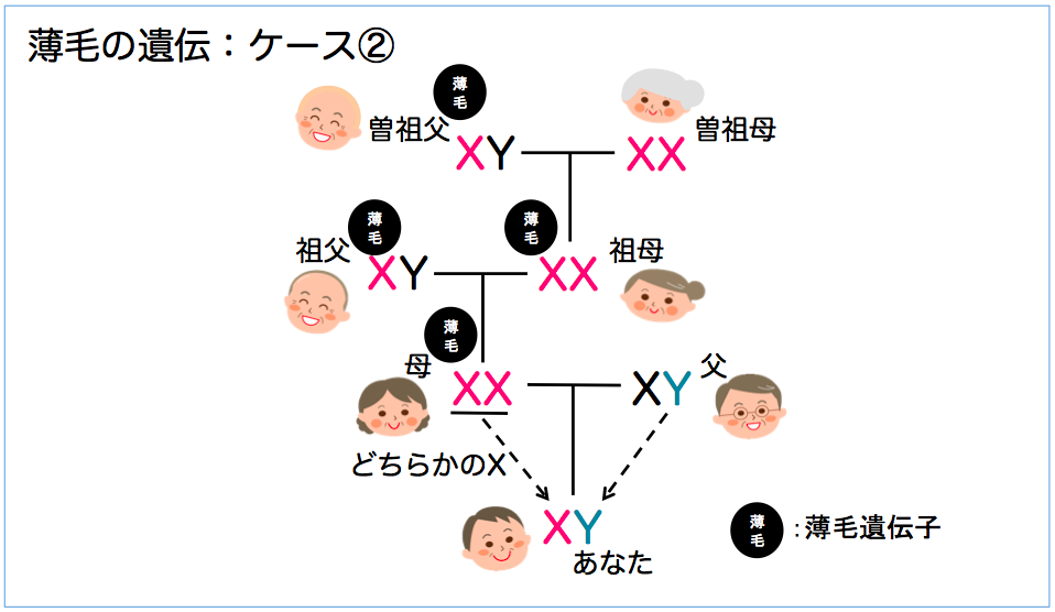 薄毛の遺伝3