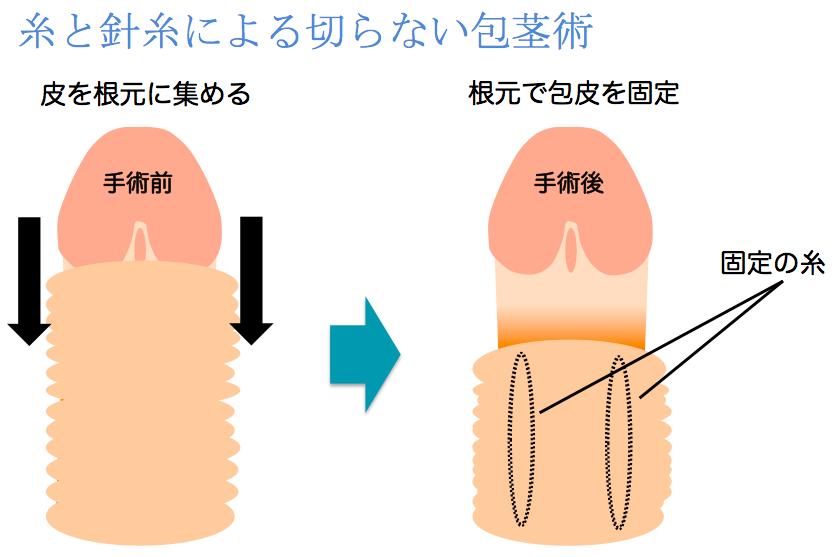 1-4 糸と針による切らない包茎術説明イラスト