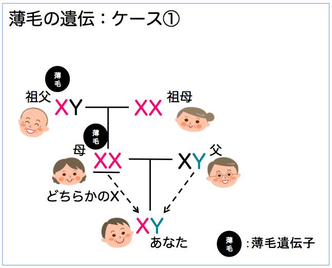 薄毛の遺伝2