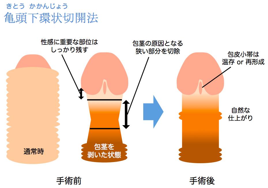 亀頭下環状切開説明図
