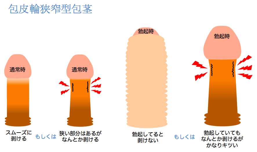 包皮輪狭窄型包茎