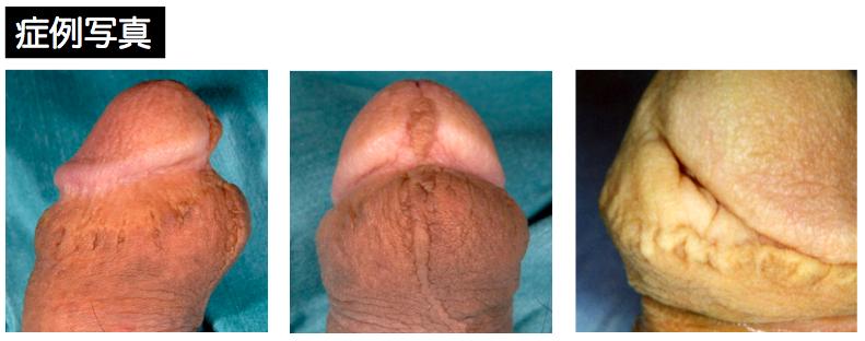 かん と ん ほう けい 腫れ