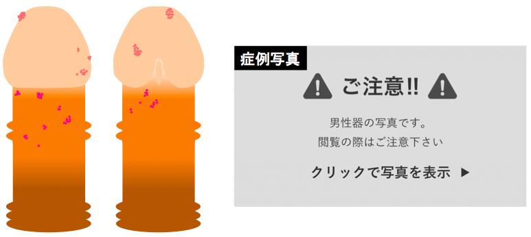 尖圭コンジローマ画像