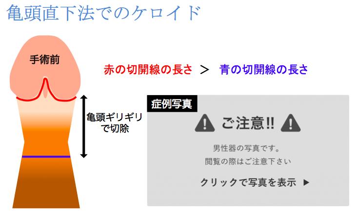 亀頭直下法によるケロイド説明図