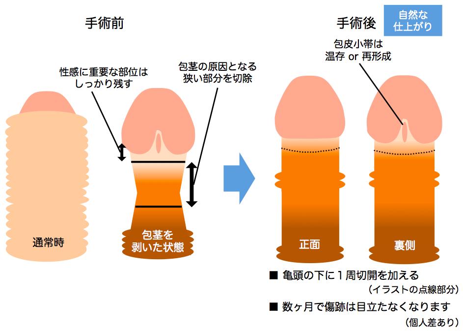包茎手術の一般的な傷跡説明画像