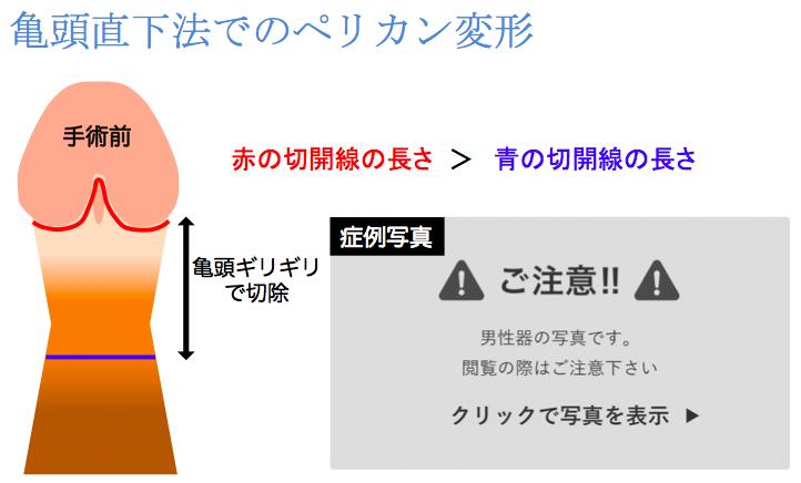 亀頭直下法によるペリカン変形説明図