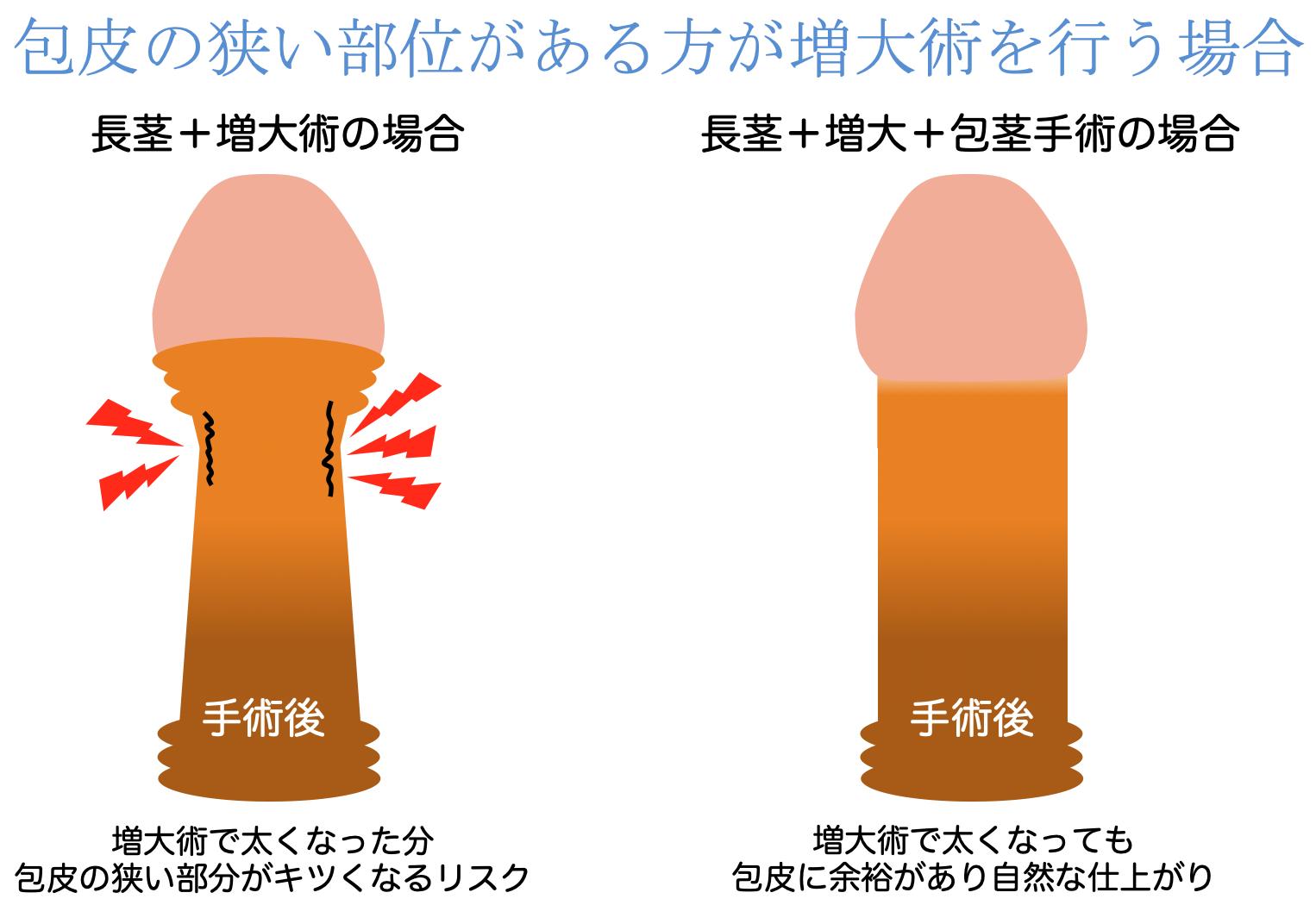 包茎の同時手術がオススメな理由画像