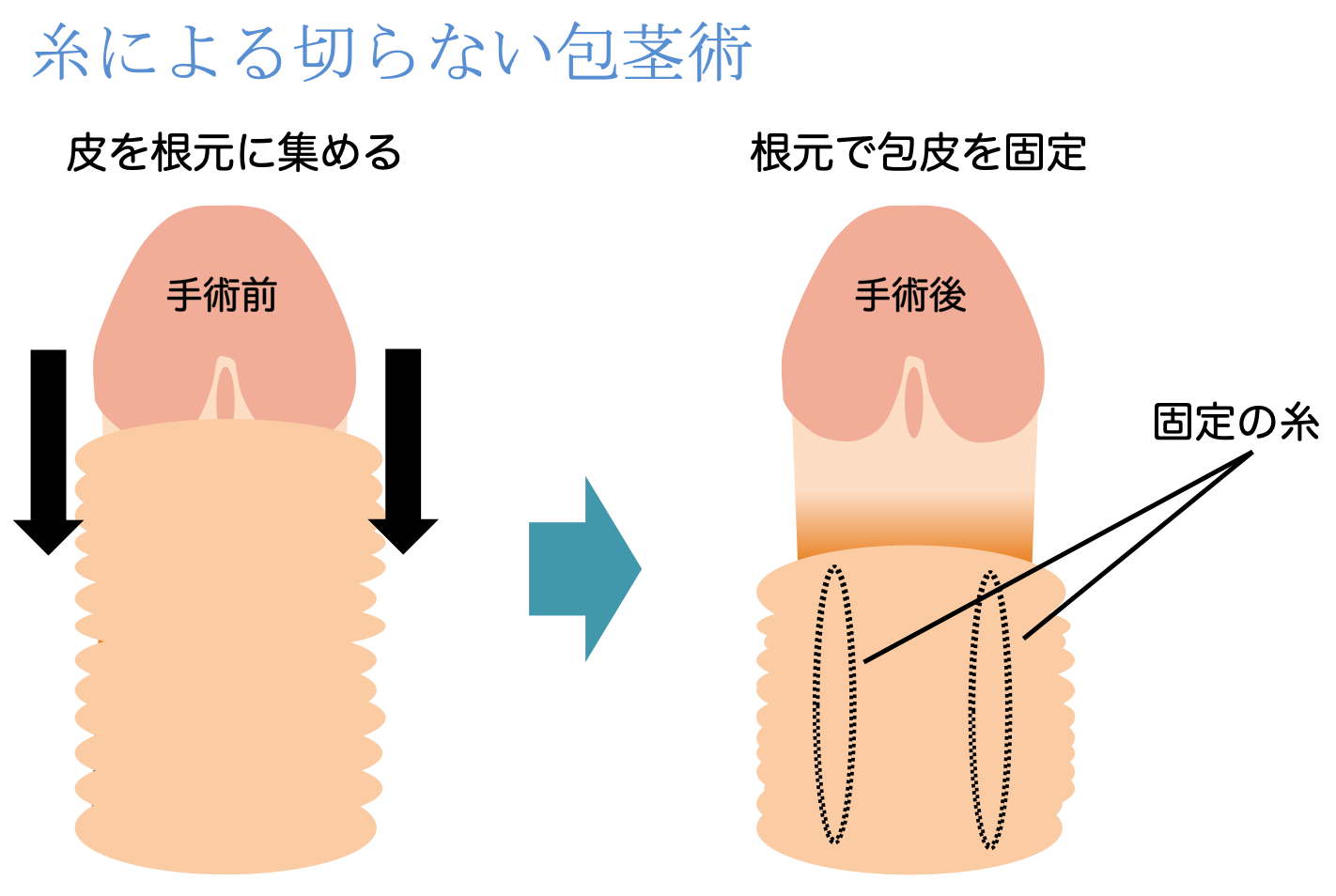 糸による切らない包茎術説明イラスト