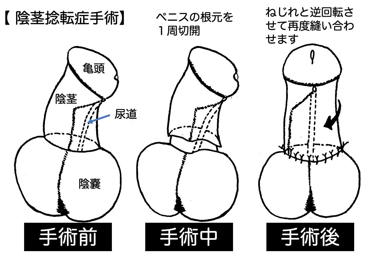 陰茎捻転症手術解説イラスト